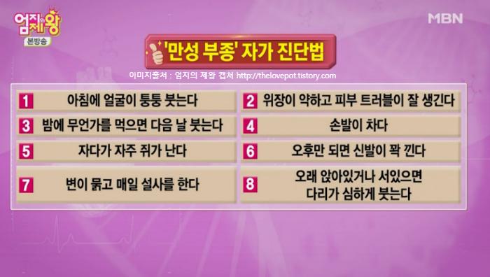 엄지의 제왕 335회 만성부종 자가진단법 & 부기(붓기)원인과 해결방법  6월 18일 방송3