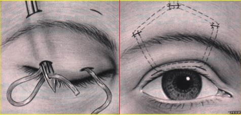 이마근 걸기술, Frontalis brow suspension