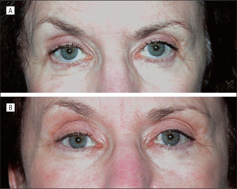 공막보임(scleral show)과 동그란눈(round eye)의 치료