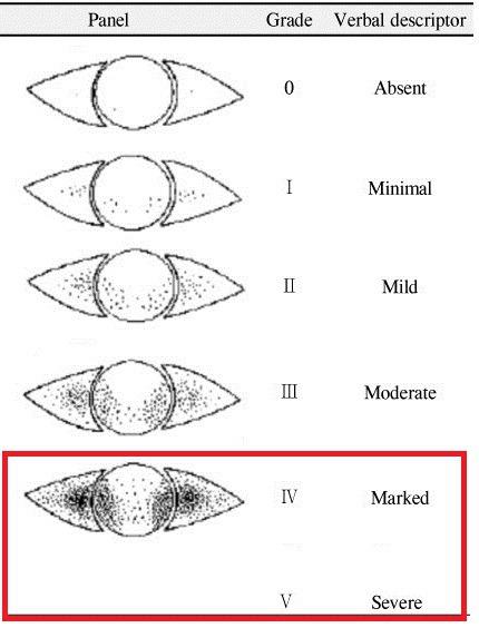 각막 염색 점수 (CFS, Corneal fluoresein score)가 4점 이상