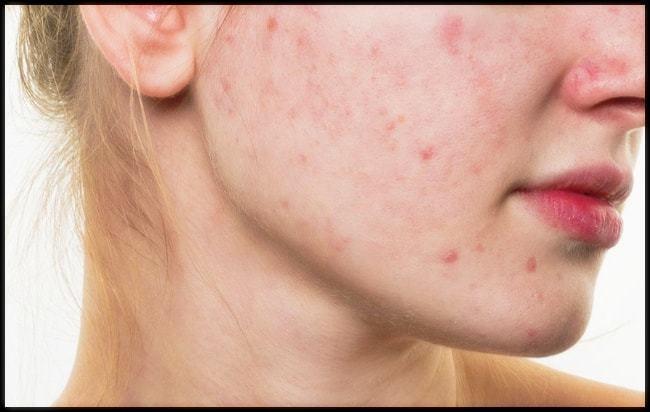 건조한 날씨 '얼굴 피부질환' 예방법 5가지1