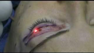 레이저를 이용한 미용수술