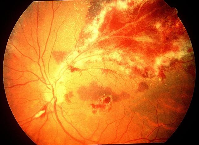 AIDS 환자에서의 CMV retinitis