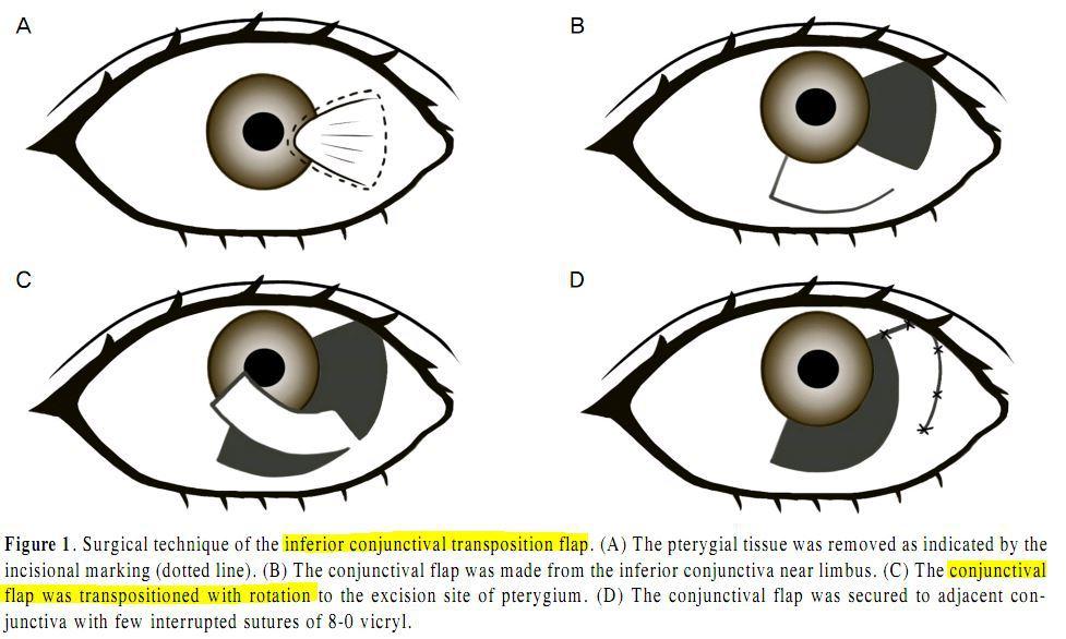 군날개 수술에서의 결막판의 이용 - JKOS 2009 Dec;50(12):1774-9