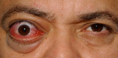 갑상선 안병증