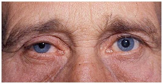 우측편의 호너증후군과, 우안의 눈꺼풀처짐