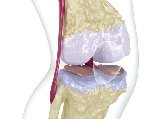 무릎골관절염_치료제