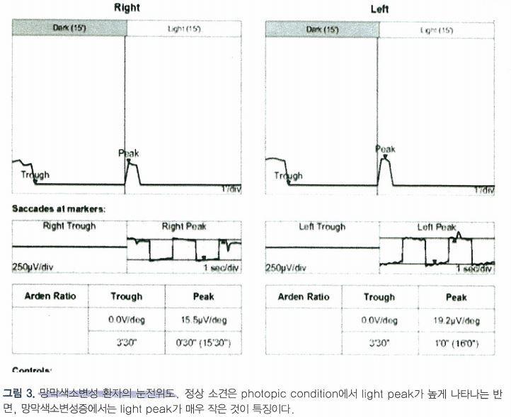 망막색소변성증 (Retinitis pigmentosa, RP)에서의 눈전위도, Electrooculogram, EOG