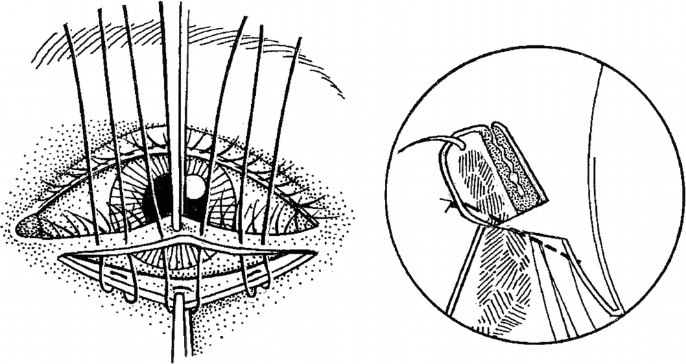 Wies procedure (전층 눈꺼풀절개술 및 눈꺼풀테 회전술)