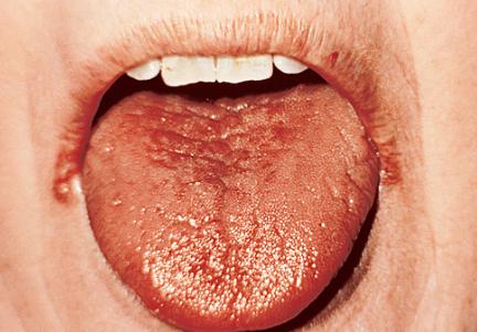 입마름 증상