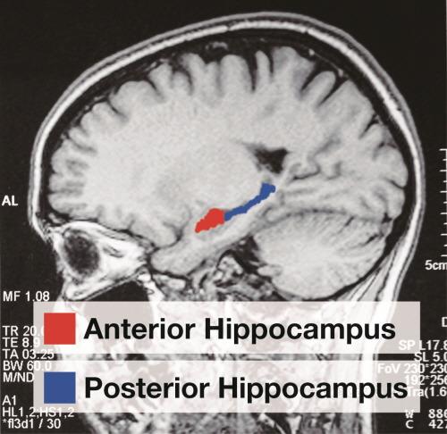 Lodon-Taxi-Driver-Anterior-Posterior-Hippocampus