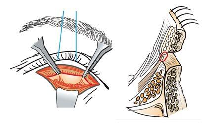 아래눈꺼풀당김기재부착술, Lower lid retractor reinsertion, LLRR 수술 모식도