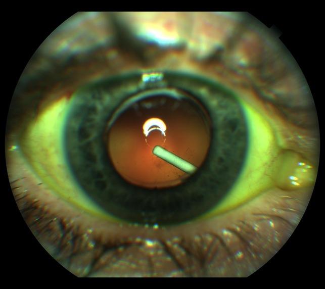 눈안에 삽입된 오저덱스
