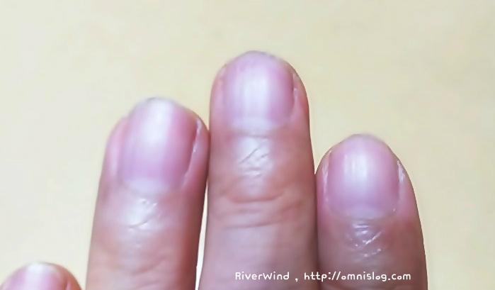 손톱 색깔