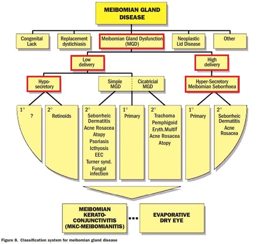 마이봄샘 기능장애 (MGD)의 분류 - IOVS 2011;52(4):2006-49