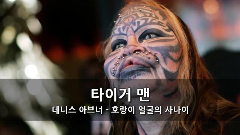 타이거 맨 데니스 아브너 - 호랑이 얼굴의 사나이 성형얼굴