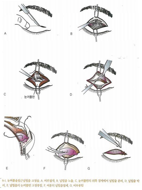 눈꺼풀올림근널힘줄교정술(Levator Aponeurosis Repair)의 수술방법