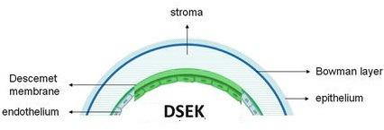 데스메막박리 각막내피층판이식술(Descemet Stripping Endothelial Keratoplasty, DSEK)