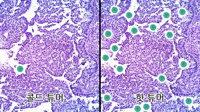 T세포가 적은 쪽과 많은 쪽 비교 예시