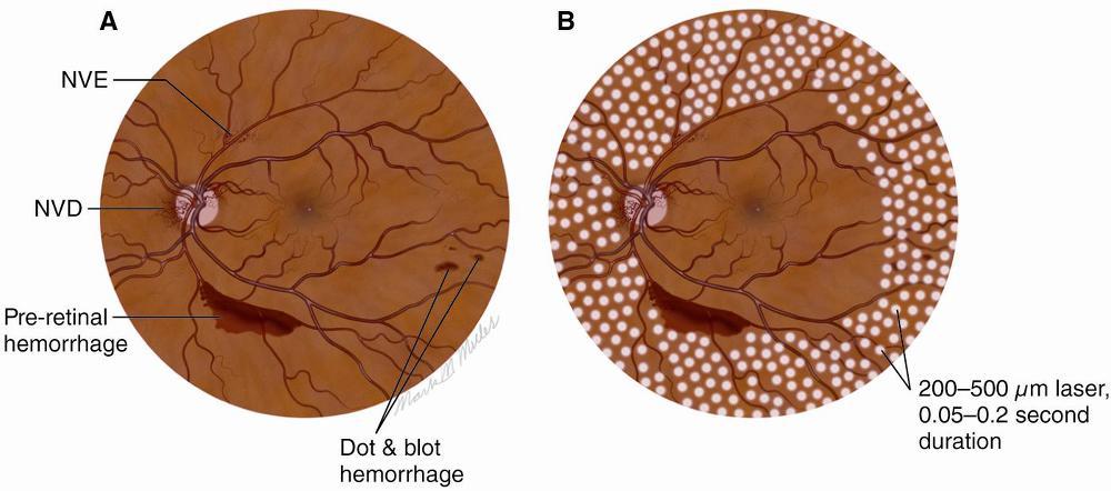 고위험 증식성당뇨망막증(PDR)에서의 범망막광응고술