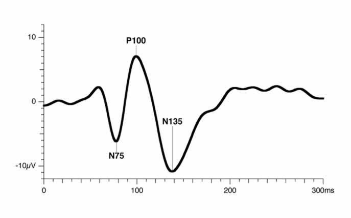 Pattern VEP의 파형
