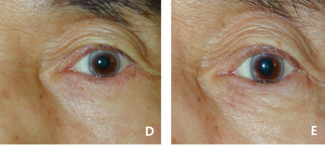 아래눈꺼풀당김기재부착술 수술 전후