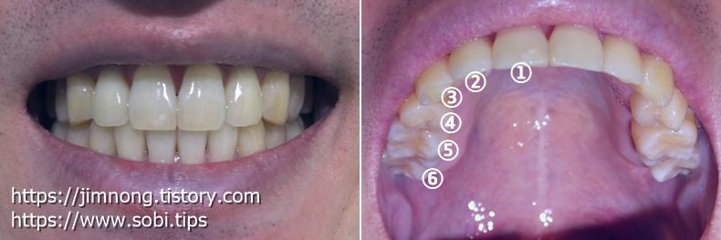 치아교정 발치교정 비용 무료