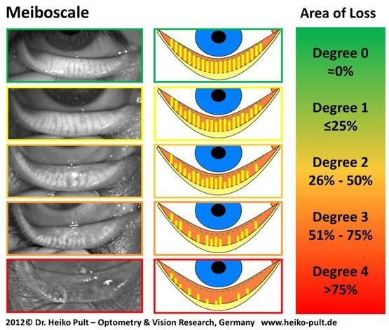 마이봄샘 촬영을 통한 마이봄샘 기능장애의 분류 (Meiboscale)