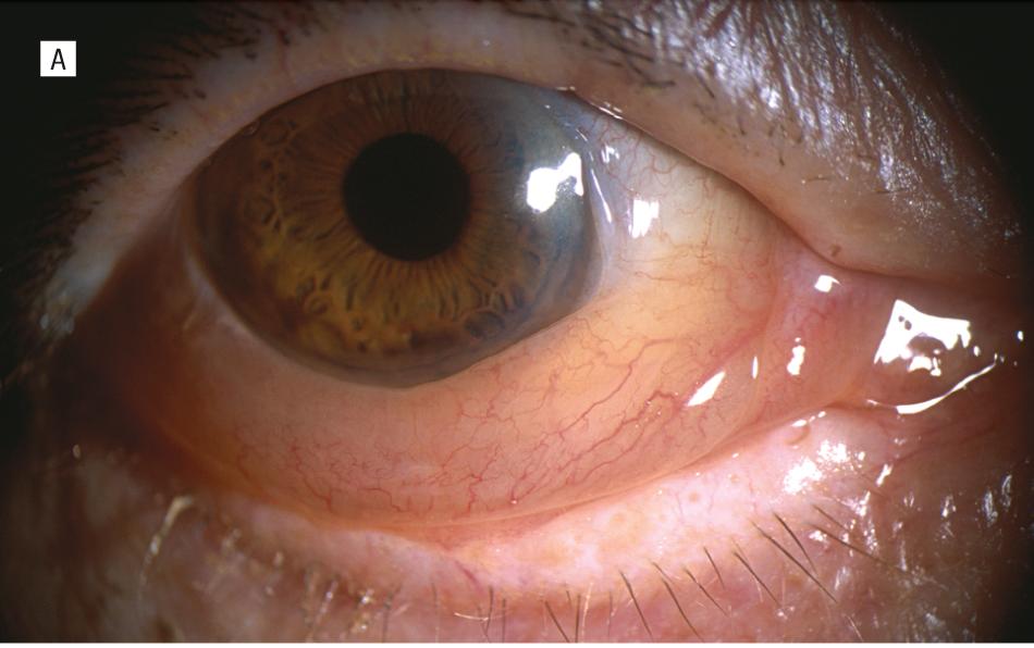 눈꺼풀 수술이후 발생한 결막 부종