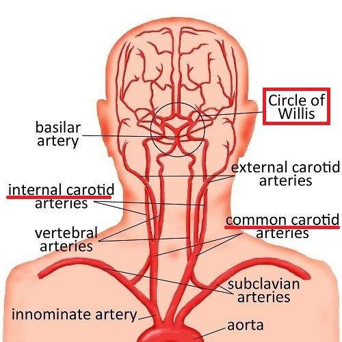속목동맥-대뇌동맥륜