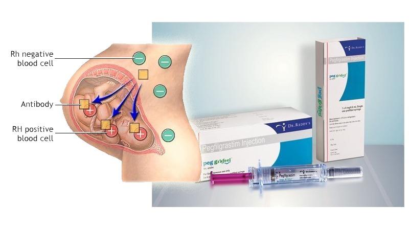 사진: RH면역글로불린을 통하여 RH- 적아세포증을 방지하는 것을 그린 그림.