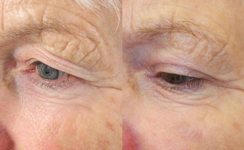 윗눈꺼풀 성형, Upper blepharoplasty 전후