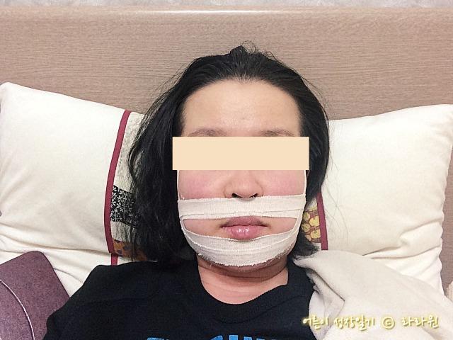 양악수술 핀제거수술 2일째