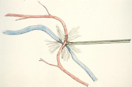 동정맥외막초절개술(AV sheatotomy)
