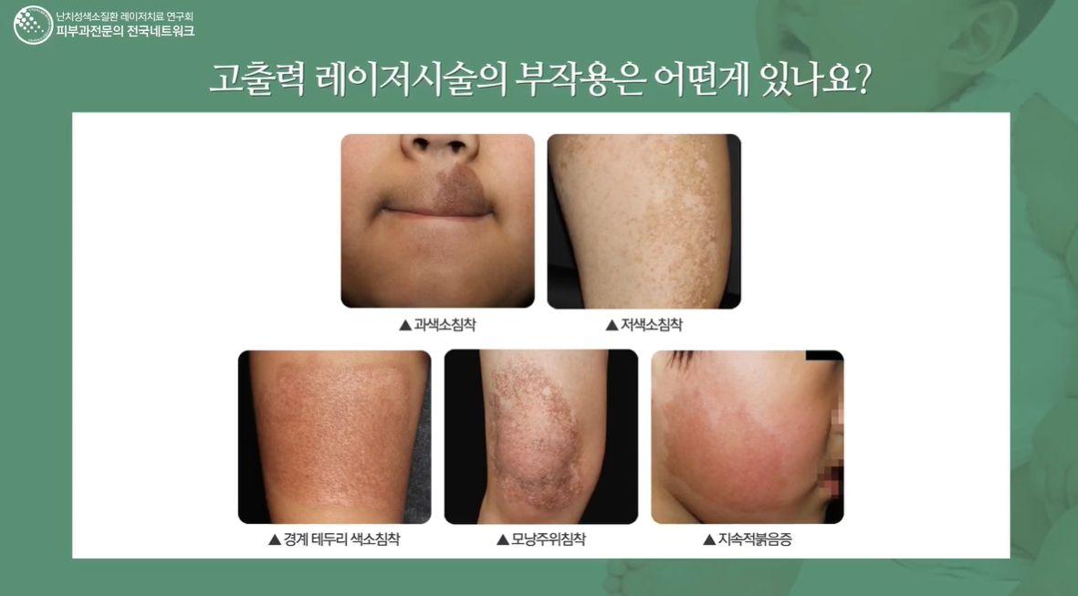 밀크커피반점(오타모반) 치료 후기(병원광고 아닙니다!)