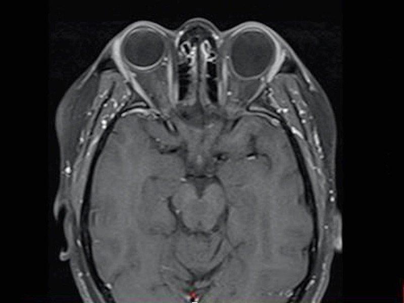 MRI에서 발견되는 후포도종