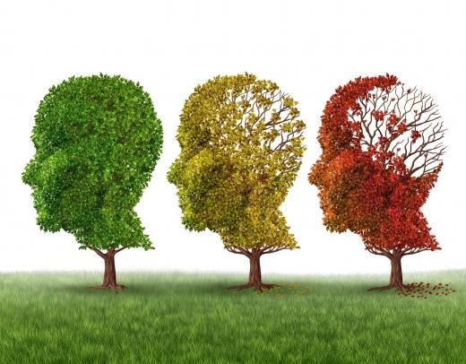 치매 알츠하이머 예방 증상 (사진=포토리아)