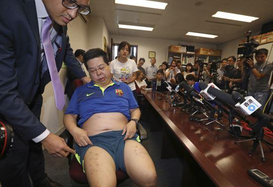 홍콩 민주당의 하워드 람 당원이 11일 홍콩의 기자회견실에서 다리에 박힌 스테이플러 철심을 보여주고 있다. AP뉴시스
