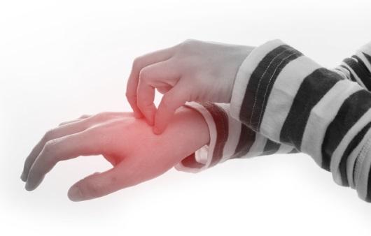 아토피 피부염의 나이별 증상과 치료
