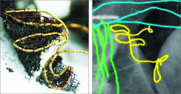 전북 익산 미륵사지에서 출토된 백제 금실(왼쪽)과 일본 아부야마 고분 관모에서 금실이 드러난 X레이 사진. 꽃 문양 수를 놓았던 백제 금실의 형태가 아부야마 고분 금실의 한 부분(노란색)과 비슷하다. /무다구치 아키토