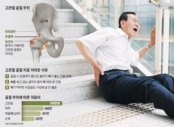 중장년 고관절 골절, 癌보다 치명적.. 사망 확률 높고 의료비 부담 커