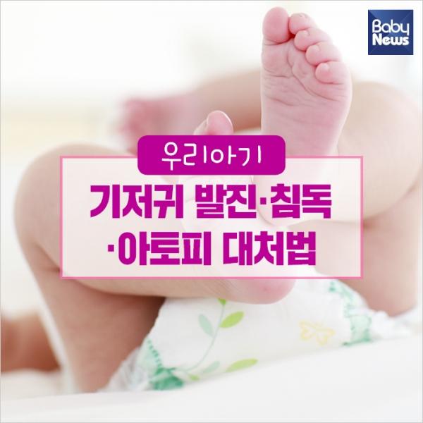 우리아기 기저귀 발진·침독·아토피 대처법