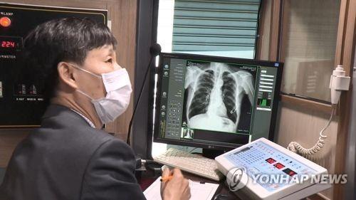결핵검진 [자료사진=연합뉴스]