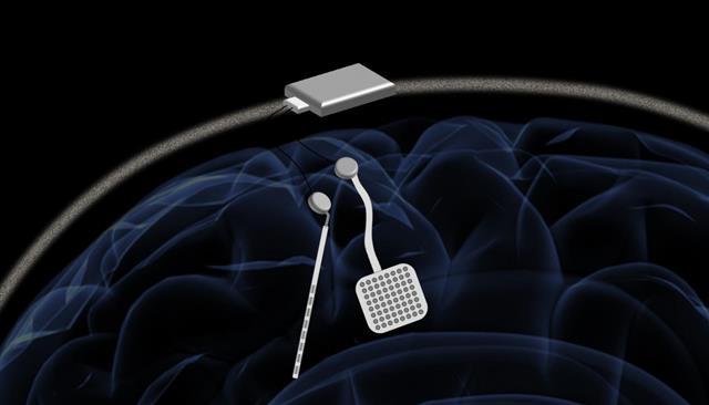 두개골 바깥쪽에 장착되는 미세전류 발생장치는 뇌의 64개 부위에서 나타나는 전기적 신호를 모니터링하는 동시에 비정상적으로 나타나는 발작이나 이상 징후를 효과적으로 제어할 수 있는 것으로 나타났다.미국 캘리포니아버클리대(UC버클리) 제공