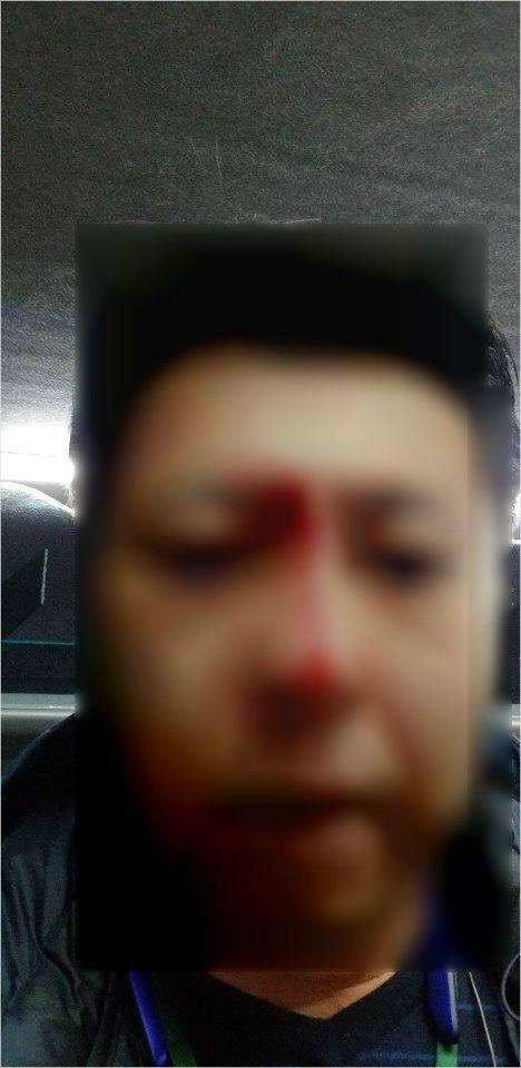 폭행 당시 사진 (사진=가이드 당사자 제공)