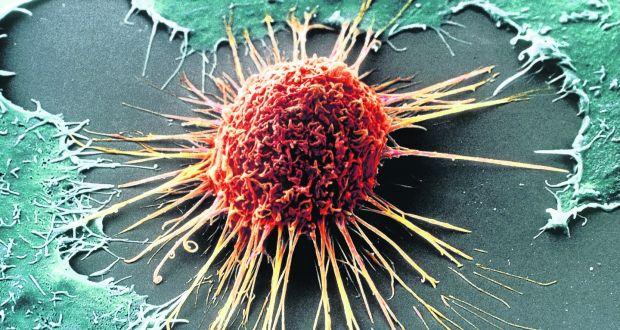 암세포 이미지