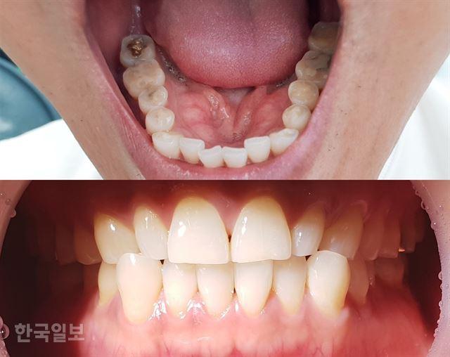 [저작권 한국일보]마모가 심하게 된 40대 중반 남성의 치아 사진. 잘못된 치아관리와 생활습관으로 50대 중반에서 볼 수 있는 치아상태(위의 사진)를 보이고 있다. 아래 사진은 겉으로는 큰 이상이 없어 보이지만 잇몸 퇴축과 치주질환 전조 증상을 나타내고 있다. 김민규기자 whitekmg@hankookilbo.com