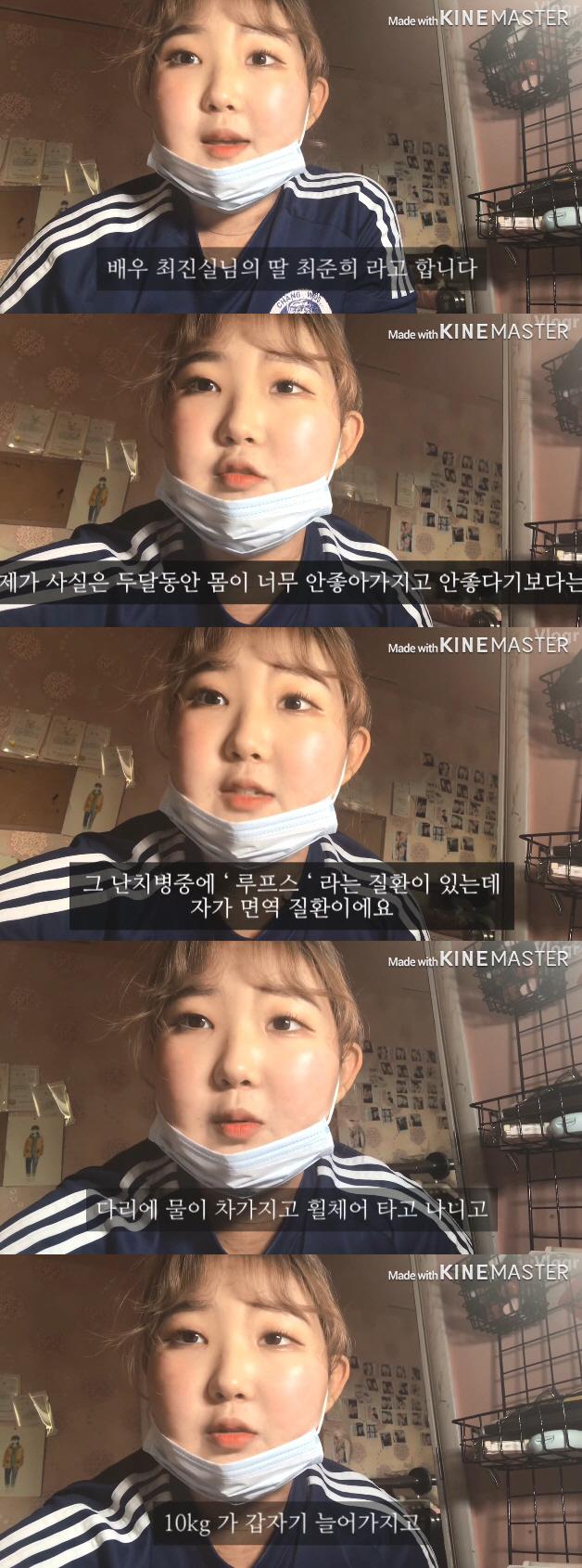 """[종합]""""용기있는 모습 고맙다"""" 최진실 딸 최준희 '루푸스 고백'에 ..."""