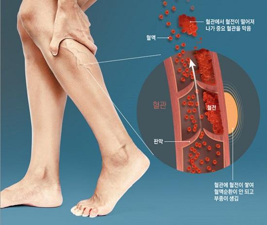 혈전은 혈관이 좁아지거나 손상돼 혈류가 느려지면서 혈관에 정체된 피가 뭉쳐진 것이다./사진=조선일보 DB