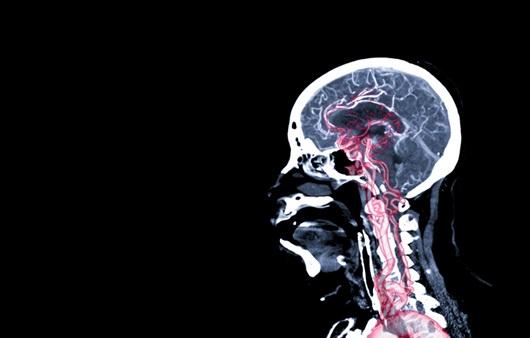 뇌혈관질환, 최대한 빨리 뇌세포를 살려야 한다
